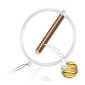 Кольцеобразная внутриматочная спираль «Юнона Био-Т Ag» с серебром Тип 1 - диаметр 18 мм